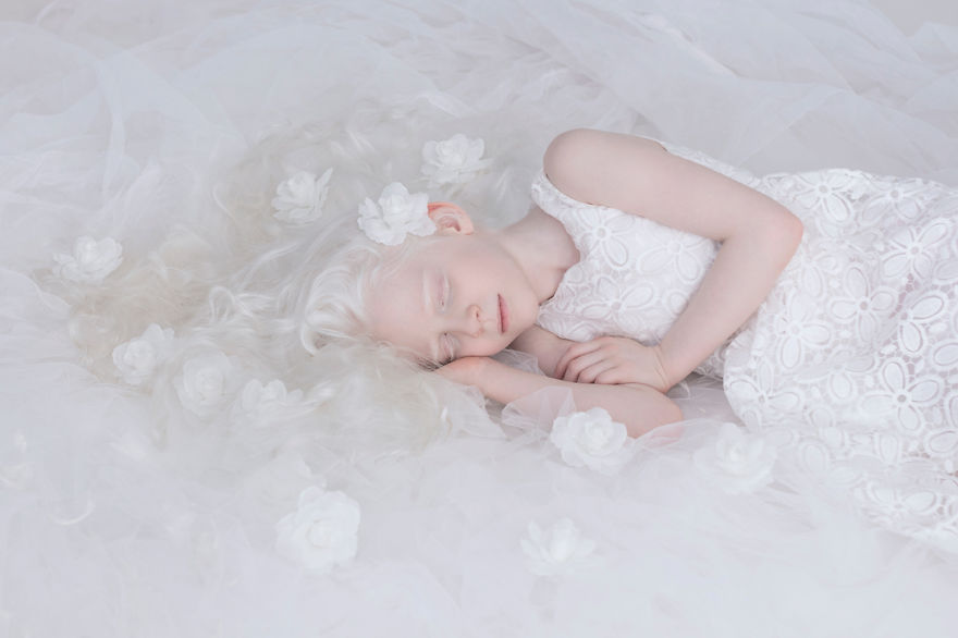 Frumusete de portelan: Splendoarea oamenilor albinosi - Poza 4