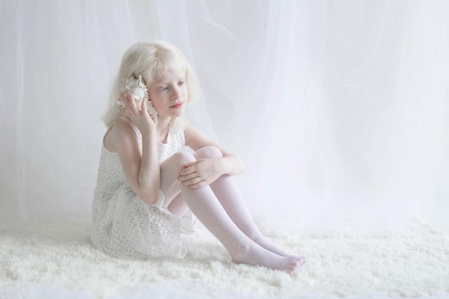 Frumusete de portelan: Splendoarea oamenilor albinosi - Poza 10
