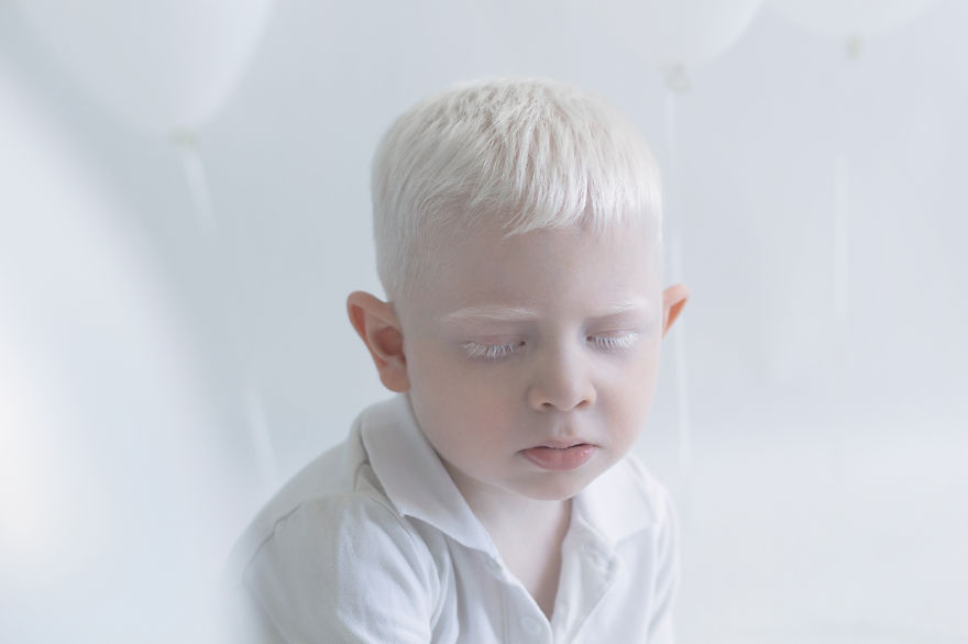 Frumusete de portelan: Splendoarea oamenilor albinosi - Poza 5
