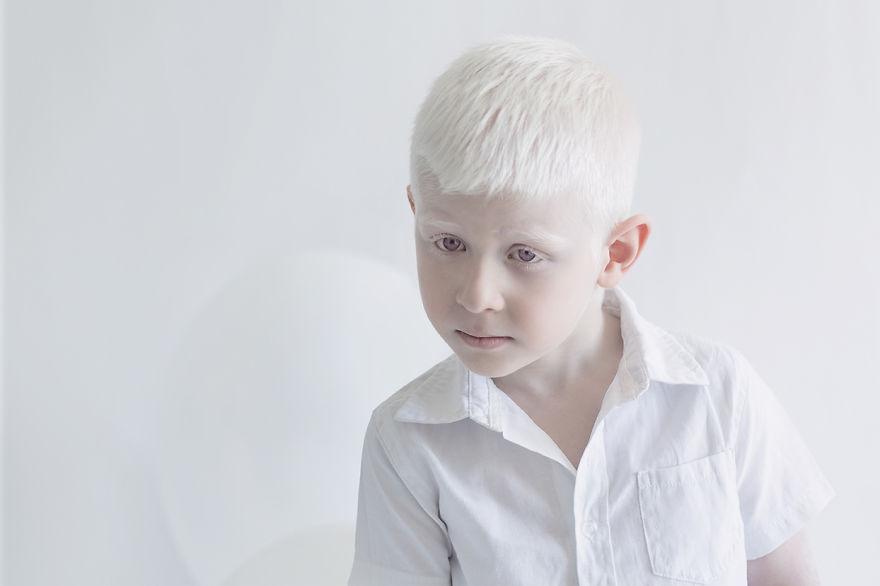 Frumusete de portelan: Splendoarea oamenilor albinosi - Poza 9