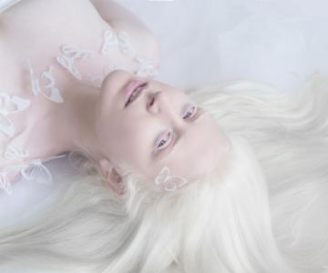 Frumusete de portelan: Splendoarea oamenilor albinosi