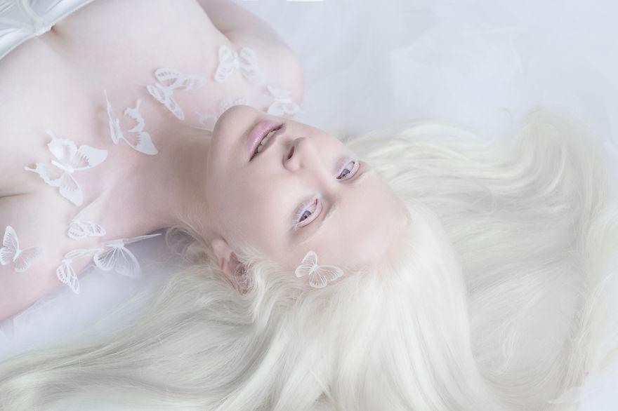 Frumusete de portelan: Splendoarea oamenilor albinosi - Poza 1