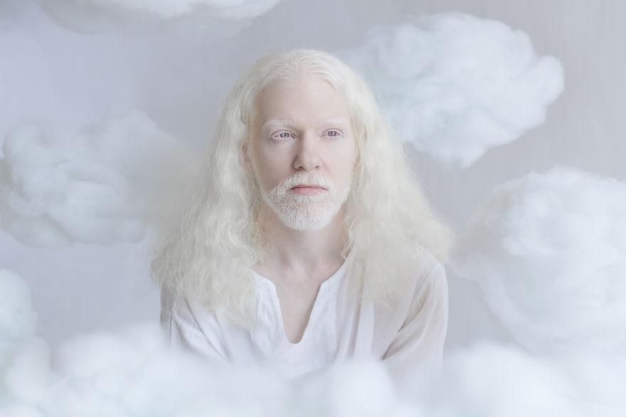 Frumusete de portelan: Splendoarea oamenilor albinosi - Poza 3