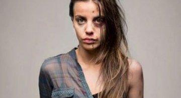 Socant: Dependenta de droguri in fotografii