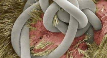 Lumea, sub lupa microscopului: Partea nevazuta a lucrurilor simple