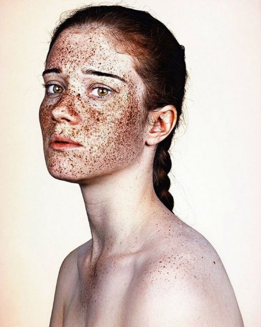 Frumusetea oamenilor cu pistrui - Poza 15