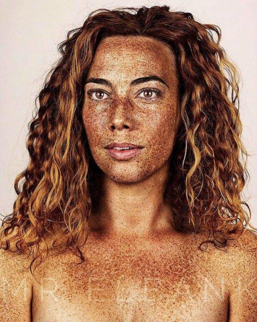 Frumusetea oamenilor cu pistrui - Poza 14