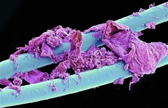 Lumea, sub lupa microscopului: Partea nevazuta a lucrurilor simple - Poza 1