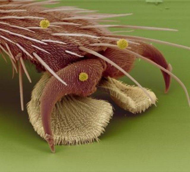 Cum se vede lumea sub lupa microscopului